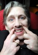 shane macgowan new teeth.jpg